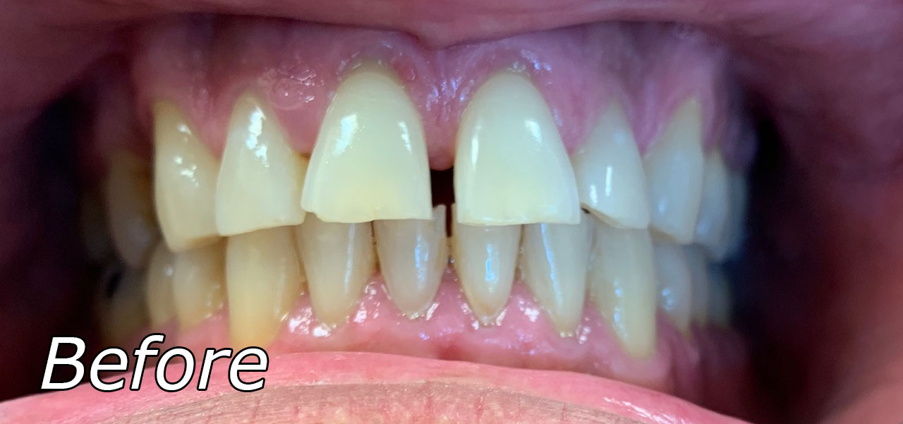 Cosmetic Dentistry Before