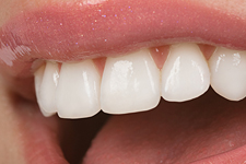 Cosmetic Dentistry in Hemet CA