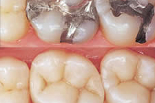 Tooth Colored Fillings in Hemet CA