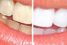Tooth Whitening in Hemet CA